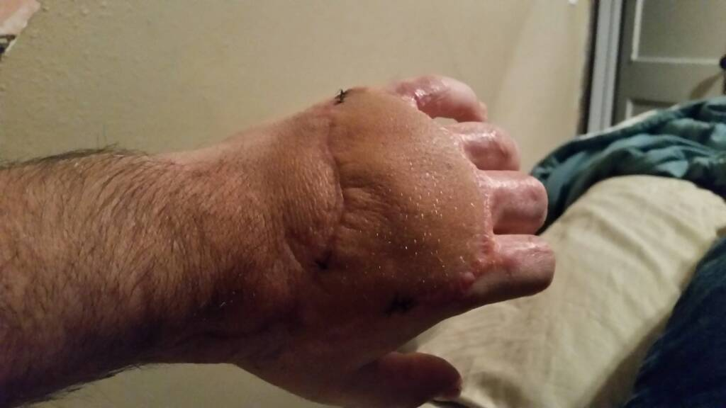 been in the hospital all week [Disturbing Pictures]-1426906207095.jpg